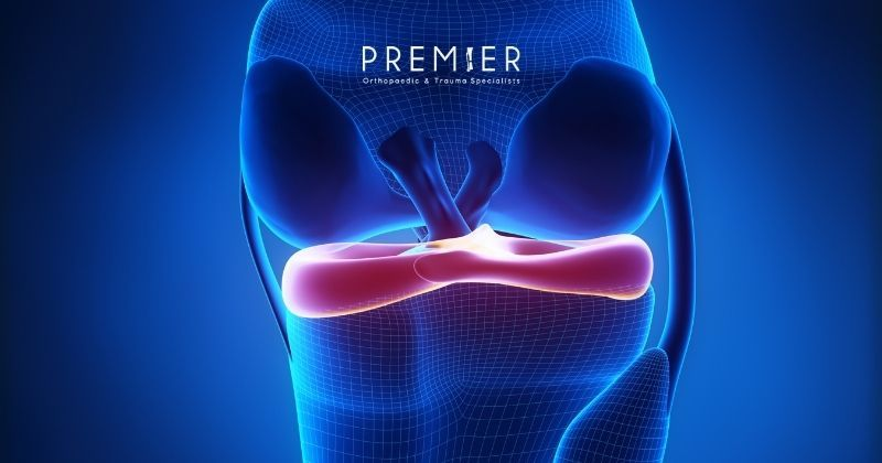 Medical illustration of a knee shows the meniscus and how it can be replaced to restore function at Premier Orthopaedic & Trauma Specialists in California