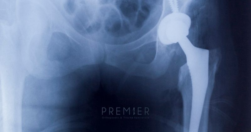 Xray image of hip joint replacement shows patients can require a joint replacement at any age. Premier Ortho logo at bottom center.